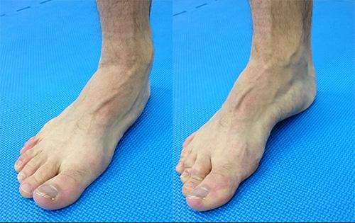 biomehanika-stopala-featured