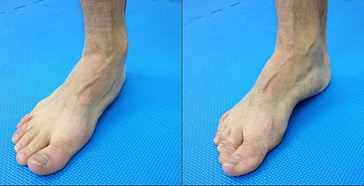 Interna i eksterna rotacija kuka i efekt na stopalo